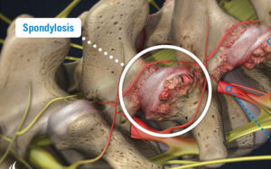 Spondylosis Treatment in Pune